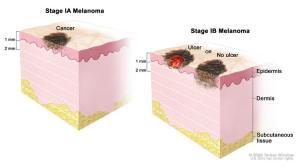 Stage I Melanoma