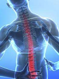 Myelitis, or inflammatory myelopathy, injures the spine and causes all sorts of maladies.