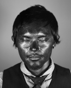 This photo shows the damage done to the skin by ultraviolet rays.